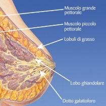 conoscere il tumore al seno