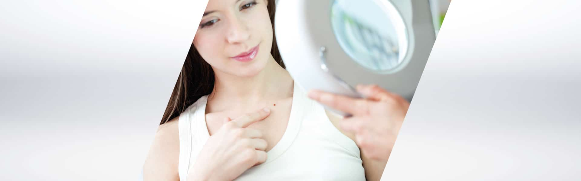 Prevenzione Dermatologica LILT Biella